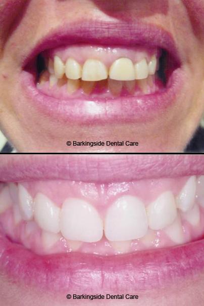 Cosmetic Dentist In Barkingside Gum Disease Treatment In