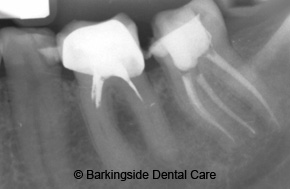 Dentists In Redbridge Endodontics Amp Root Canal Treatment
