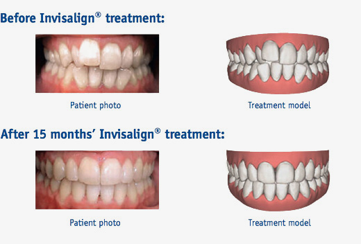 invisalign treatment Before and After